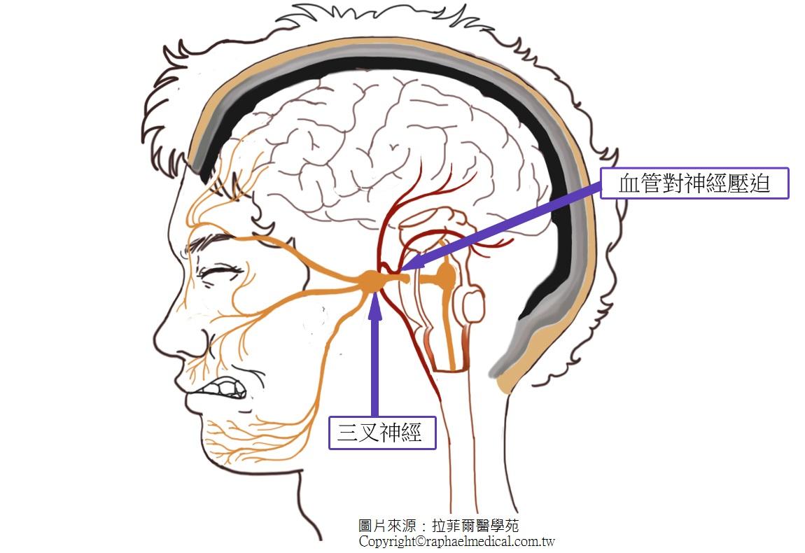 三叉神經圖解